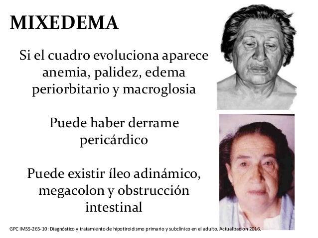 enfermedades de la tiroides hipotiroidismo  hipertiroidismo 638 x 479 · jpeg