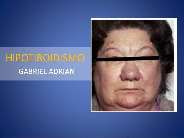 HIPOTIROIDISMO GABRIEL ADRIAN