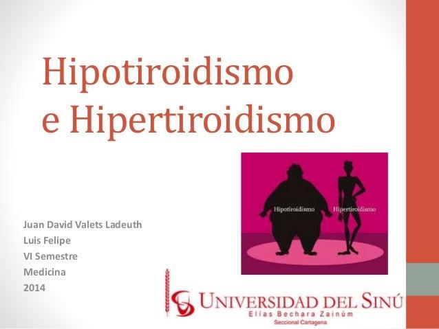 Hipotiroidismo  e Hipertiroidismo  Juan David Valets Ladeuth  Luis Felipe  VI Semestre  Medicina  2014