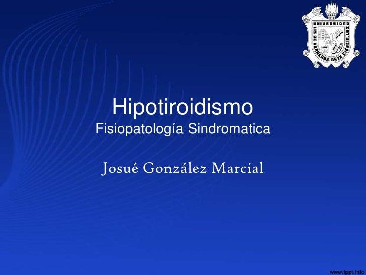 HipotiroidismoFisiopatología Sindromatica Josué González Marcial
