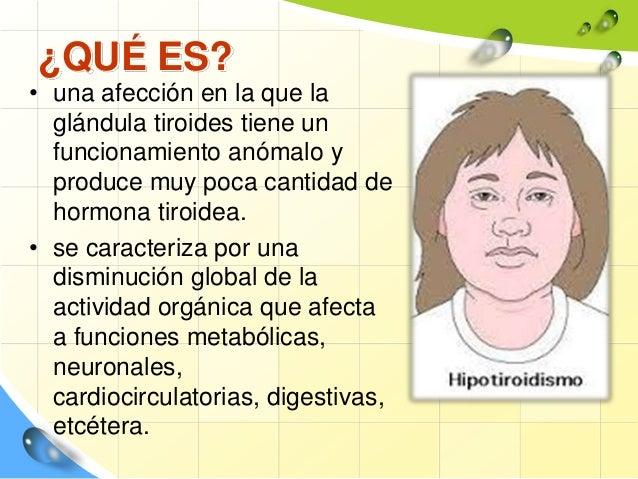 Hipotiroidismo y cuidados de enfermeria Slide 2