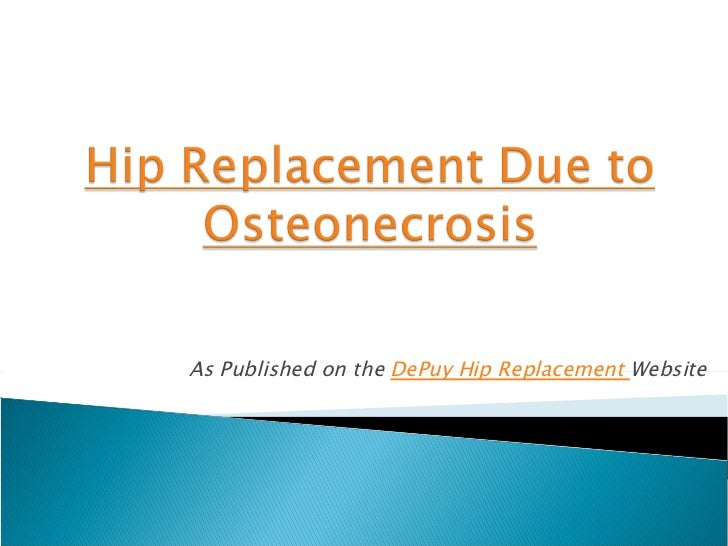 As Published on the DePuy Hip Replacement Website