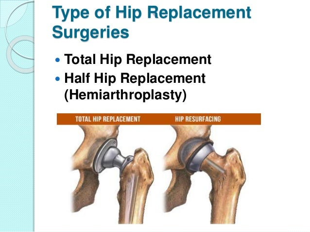 Hip Replacement Surgery In Delhi Dr L Tomar
