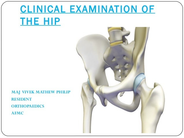 CLINICAL EXAMINATION OF  THE HIP  MAJ VIVEK MATHEW PHILIP  RESIDENT  ORTHOPAEDICS  AFMC