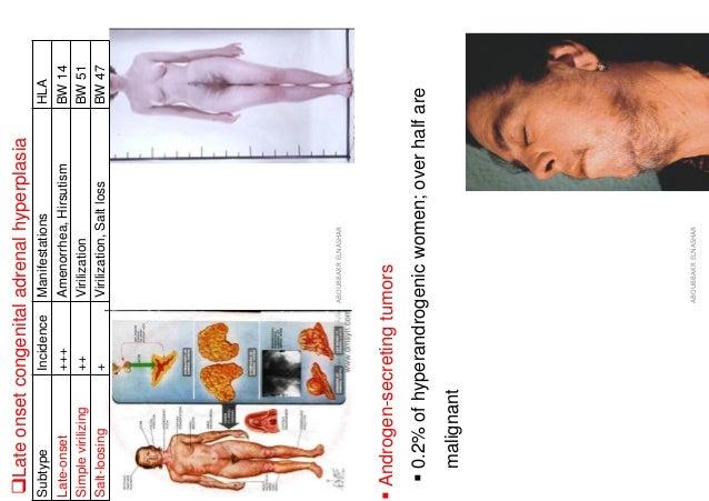 ❑Late onset congenital adrenal hyperplasia HLA Manifestations Incidence Subtype BW 14 Amenorrhea, Hirsutism +++ Late-onset...