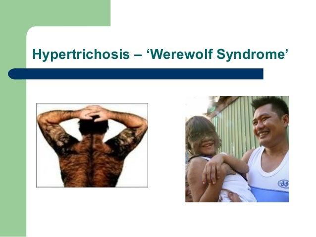 hyper 7 diagram hirsutism  amp  hypertrichosis  hirsutism  amp  hypertrichosis