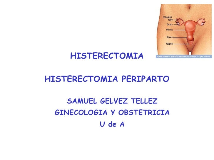 HISTERECTOMIA HISTERECTOMIA PERIPARTO <ul><ul><li>SAMUEL GELVEZ TELLEZ </li></ul></ul><ul><ul><li>GINECOLOGIA Y OBSTETRICI...