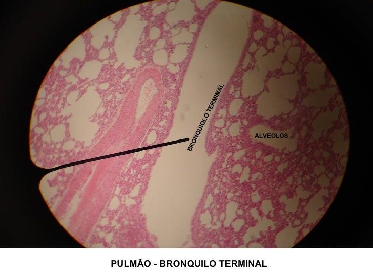 BRONQUIOLO TERMINAL ALVEOLOS PULMÃO - BRONQUILO TERMINAL