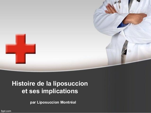 Histoire de la liposuccion et ses implications par Liposuccion Montréal
