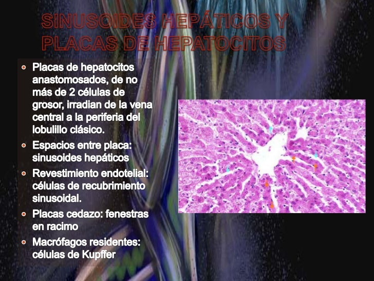 Estructura hepática general y aporte vascular<br /><ul><li>Áreas (Tríadas) portales: entre 3 lobulillos:</li></ul>R. delga...