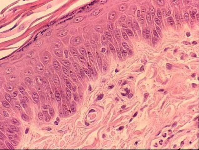 Resultado de imagen de células de la piel vistas al microscopio electrónico