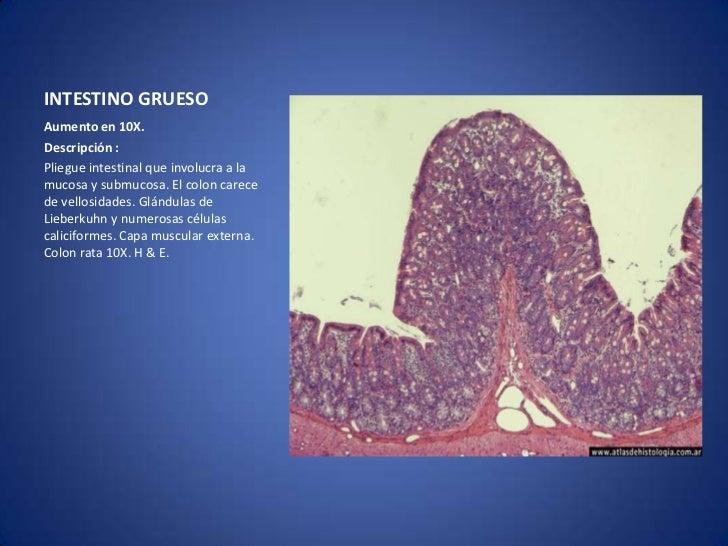 Histologia intestino grueso y apendice cecal