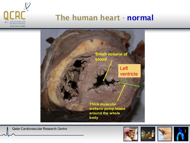Histology of heart disease heart diseases dr brian mitchelson 2 the human ccuart Image collections