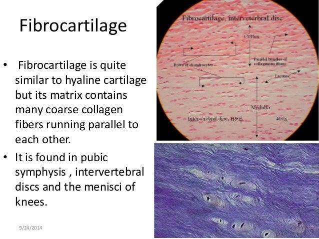 Fibrocartilage