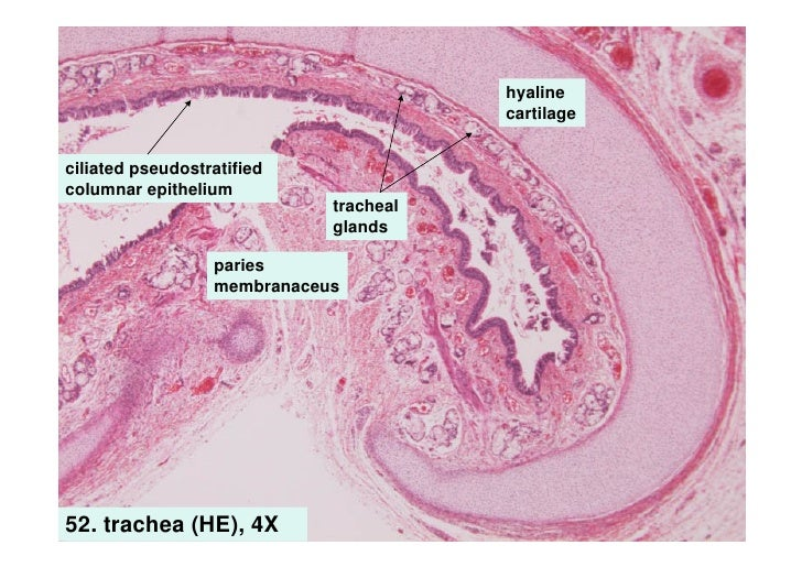 Epiglottis Histology Epiglottis Histology Labeled