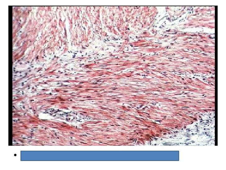 histology review 3 eagle- pathology review outline binds ige to surface, contact with antigen causes degranulation and release of histamine and heparin cause of acute anaphylaxis, allergic conjunctivitis, etc.