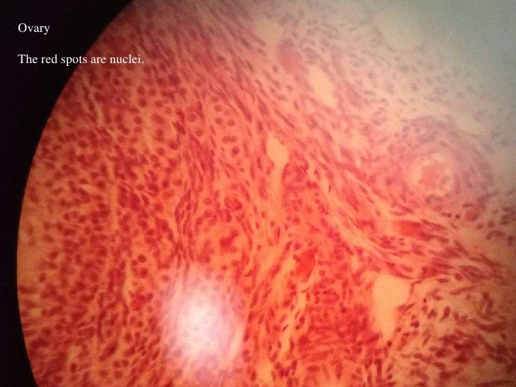 OvaryThe red spots are nuclei.