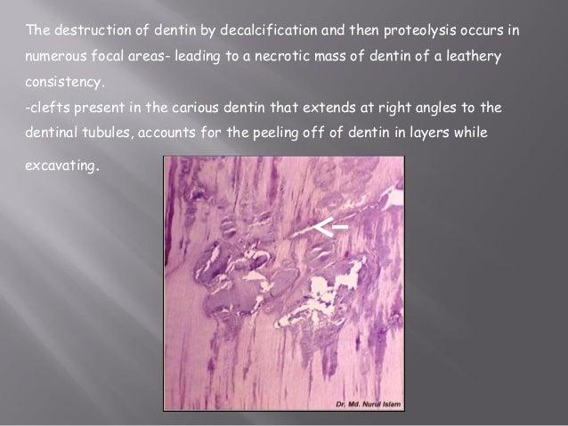 histopathology of dental caries pdf