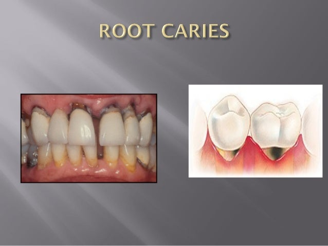 histopathology  u0026 microbiology of dental caries