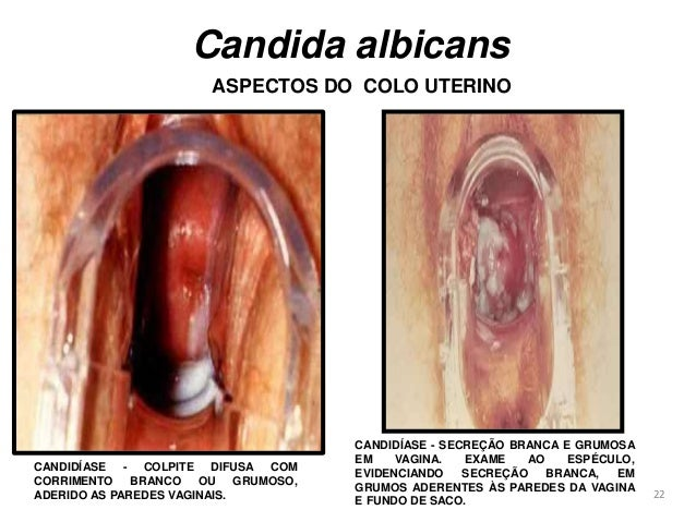 Candidiasis - Wikipedia