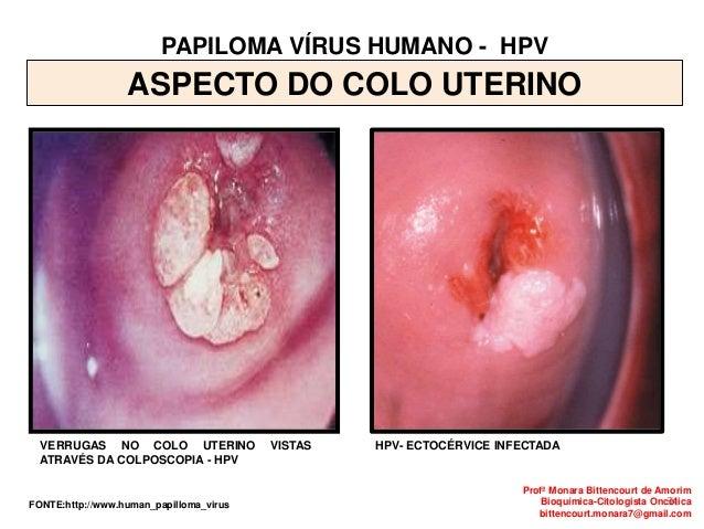 papilloma virus e colposcopia)