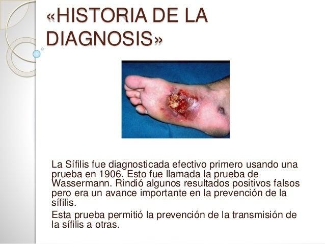 Frases De Prevencion De La Sifilis: Historia De La SÍFILIS Y La PENICILINA