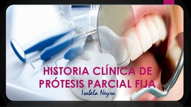 HISTORIA CLÍNICA DE PRÓTESIS PARCIAL FIJA Isabela Neyra