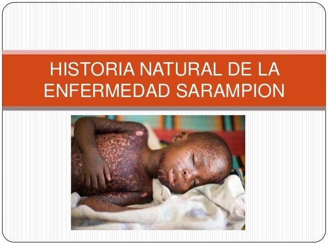 Historia Natural De La Enfermedad Sarampion