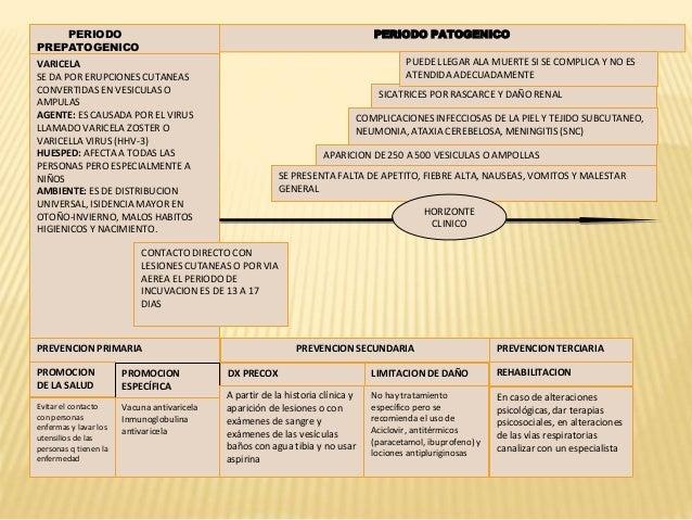 Historia Natural De La Varicela
