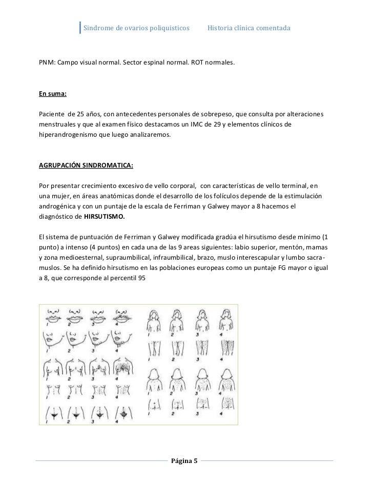 Sindrome de ovarios poliquisticos         Historia clínica comentadaPNM: Campo visual normal. Sector espinal normal. ROT n...