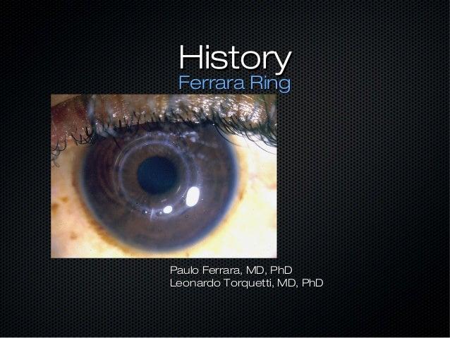 History Ferrara RingPaulo Ferrara, MD, PhDLeonardo Torquetti, MD, PhD
