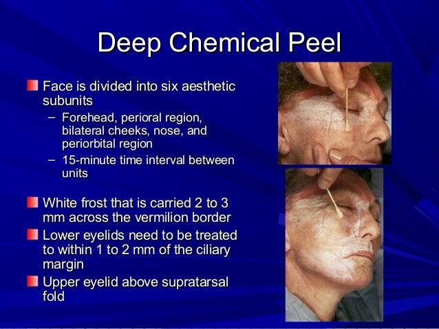 Deep facial peels