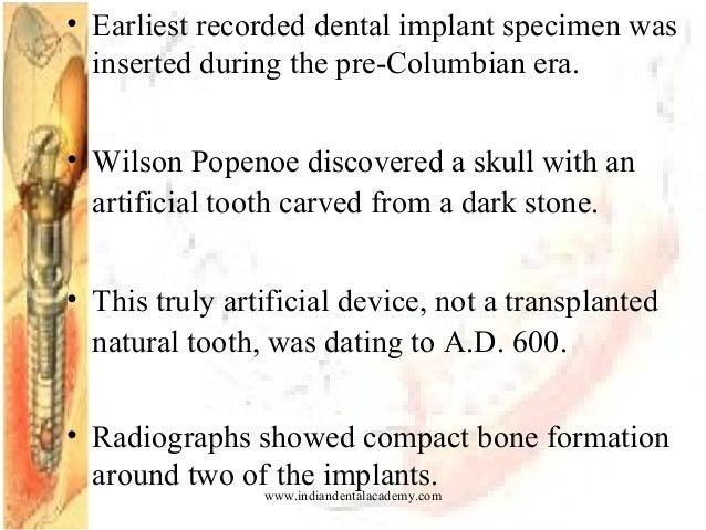 History Amp Intro Implant Dental Implant Courses
