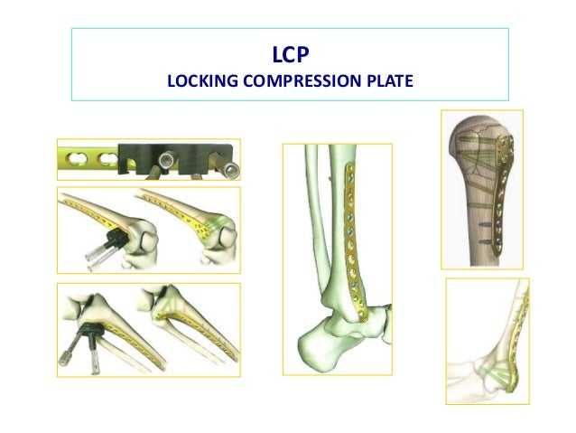 elastic plate osteosynthesis Vet comp orthop traumatol 200720(1):51-8 treatment of femoral and tibial  fractures in puppies by elastic plate osteosynthesis a review of 17 cases.
