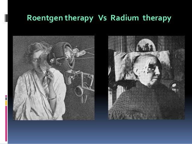 History Of Ionizing Radiation