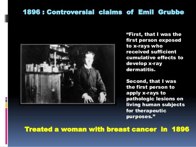 history of cancer and radiation Radiation therapy is cancer treatment,  it uses high doses of radiation to kill cancer cells and stop them from  your general health and medical history.