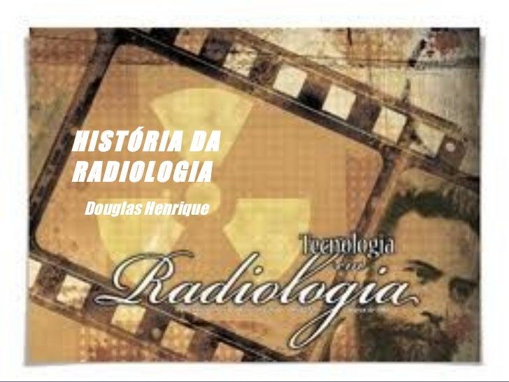 HISTÓRIA DARADIOLOGIADouglas Henrique