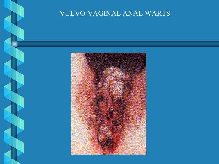 Anal warts hiv