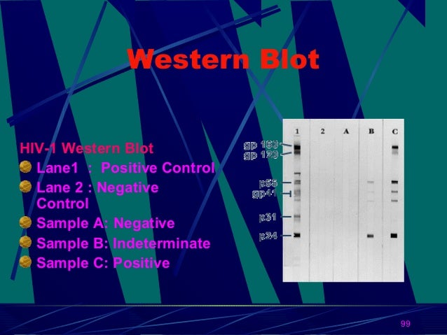 Western Blot HIV-1 Western Blot Lane1 : Positive Control Lane 2 : Negative Control Sample A: Negative Sample B: Indetermin...