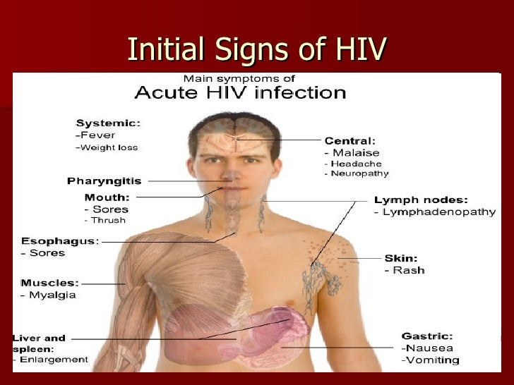 hiv, aids, & your immune system, sped 554, Skeleton