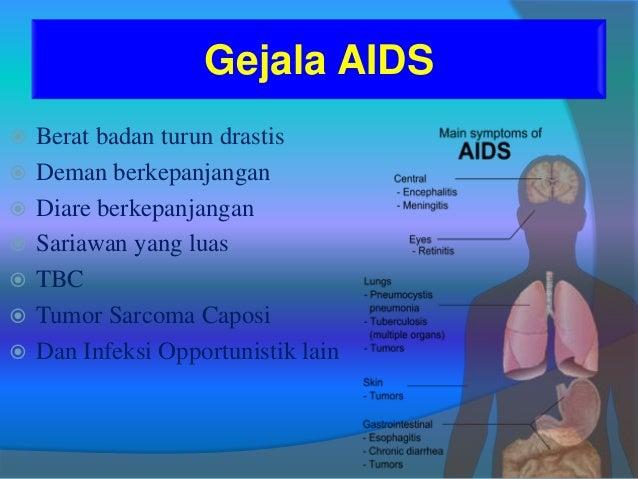 Pengobatan Hiv Aids Alami Ini Bisa Bebaskan Anda Dari Penyakit Mematikan