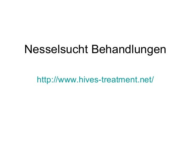 Nesselsucht Behandlungen http://www.hives-treatment.net/