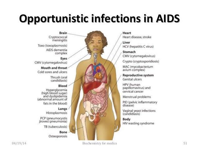 4.AIDSrelatedcomplex4.AIDSrelatedcomplex • Thepatientsareusuallyseverelyillandmany ofthemprogresstoAIDS...