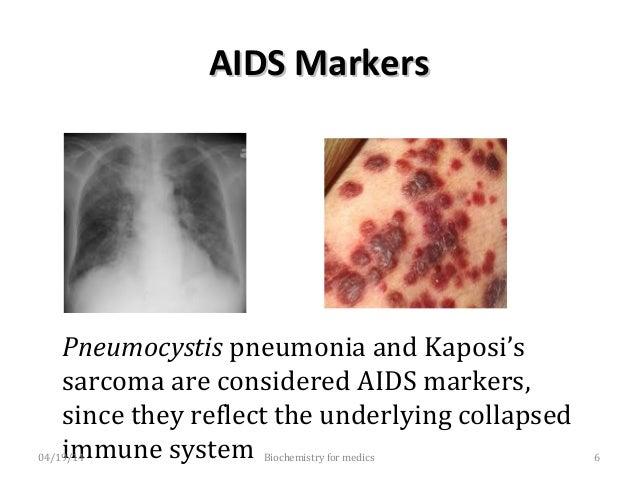 Human Immunodeficiency VirusHuman Immunodeficiency Virus • In 1986, The International Committee on virus Nomenclature deci...