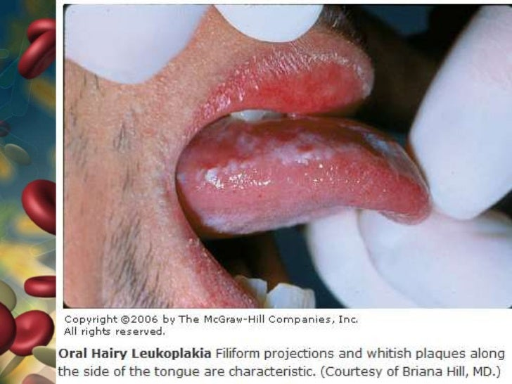 White tongue hiv - New Doctor Insights