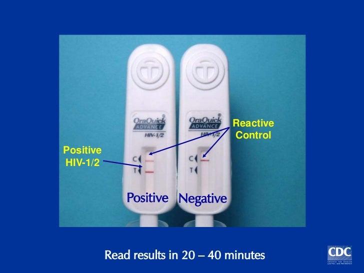 Hiv testing procidures by Dr Munawar Khan SACP