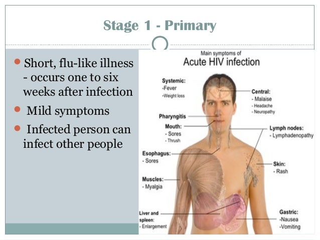 Stage 1 - Primary Short, flu-like illness - occurs one to six weeks after infection  Mild symptoms  Infected person can...