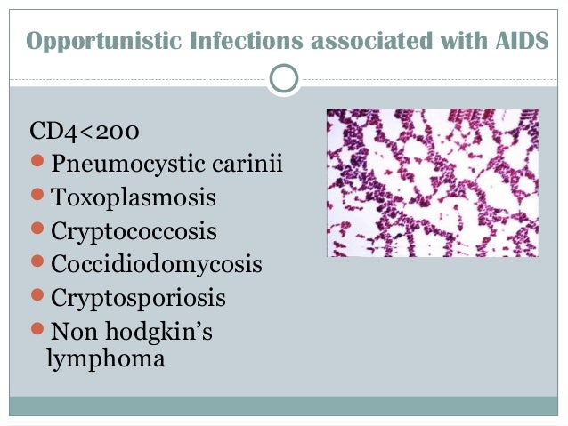 Opportunistic Infections associated with AIDS CD4<200 Pneumocystic carinii Toxoplasmosis Cryptococcosis Coccidiodomyco...