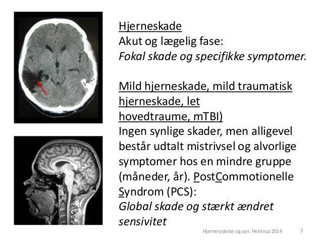 mild hjernerystelse