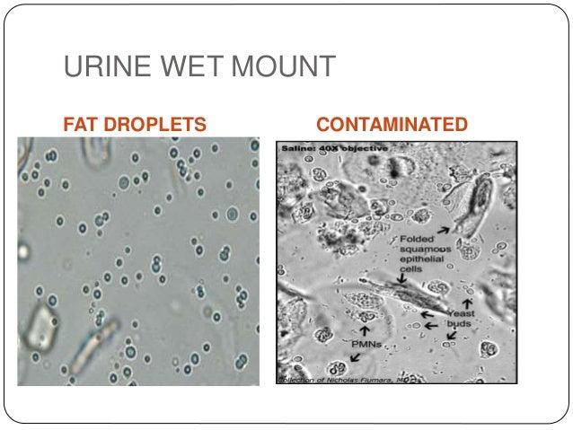 Direct Microscopy